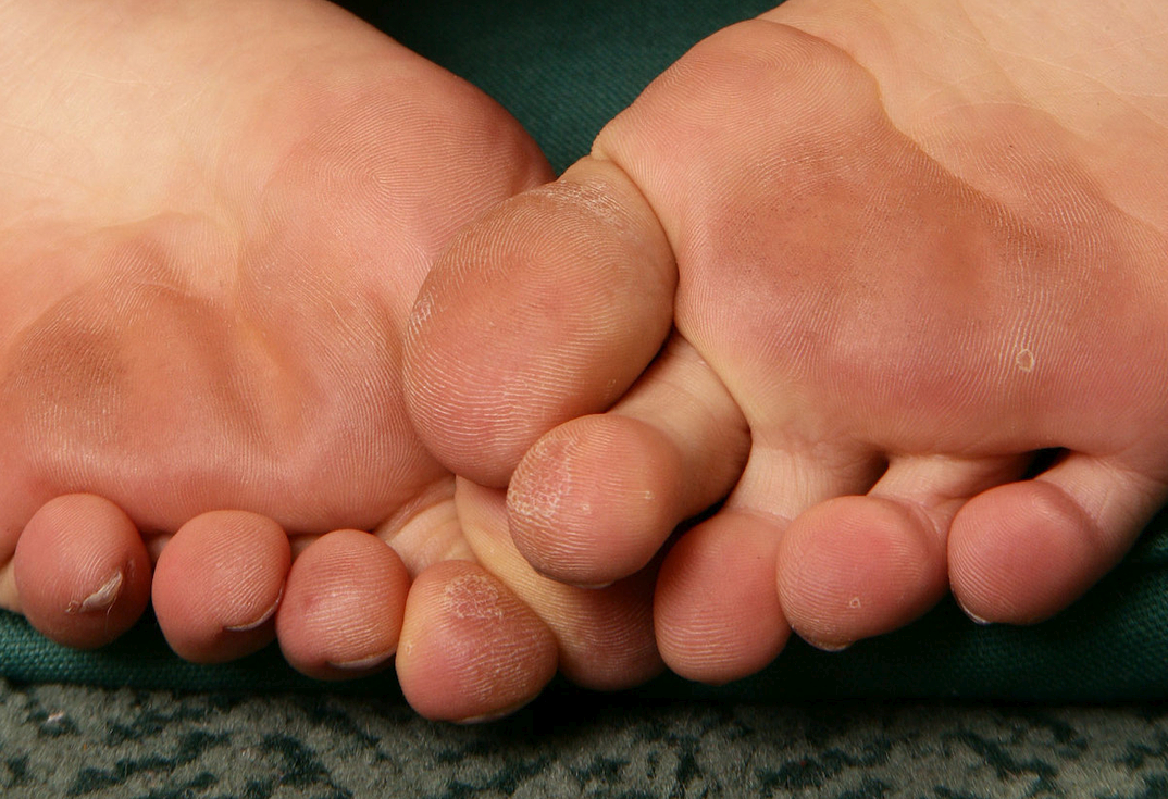 a girl named Miyu showing her toes