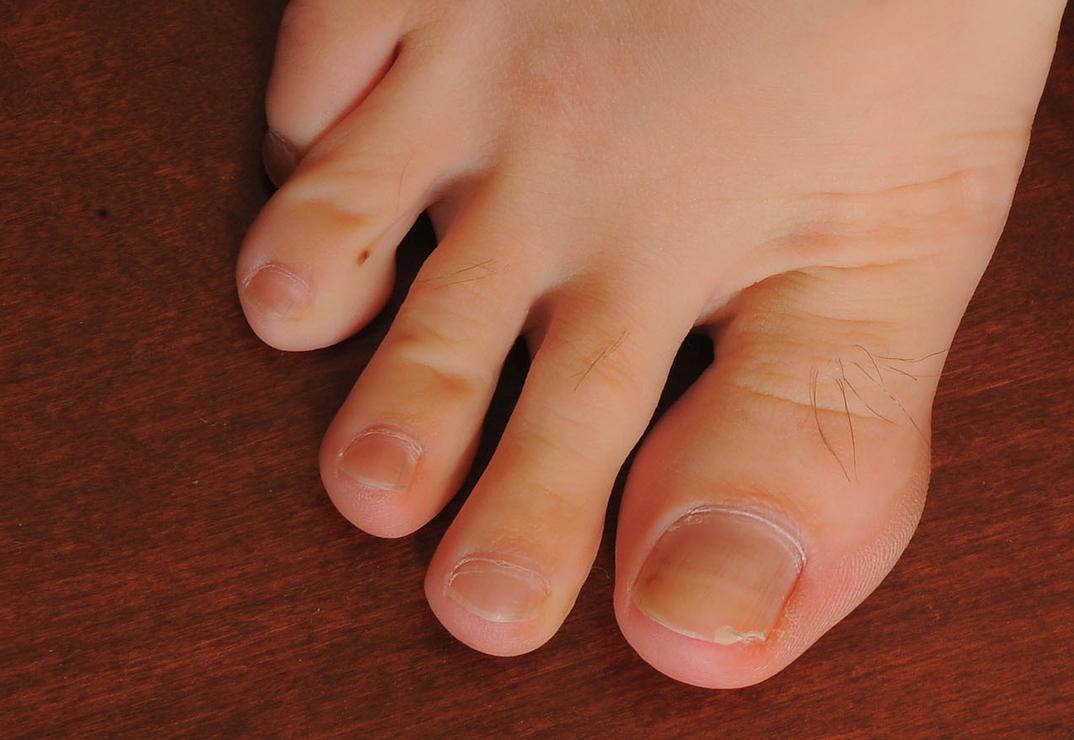 Zoey Kush's hairy toes