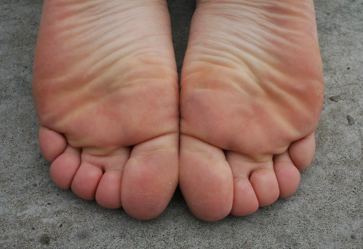 a girl named Whitney showing her feet